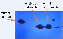 mutant actin annotated