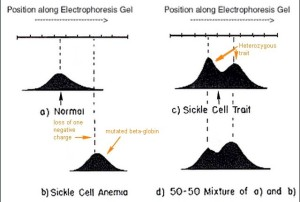 Sickle cell anemia essay